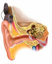 wspomaganie słuchu