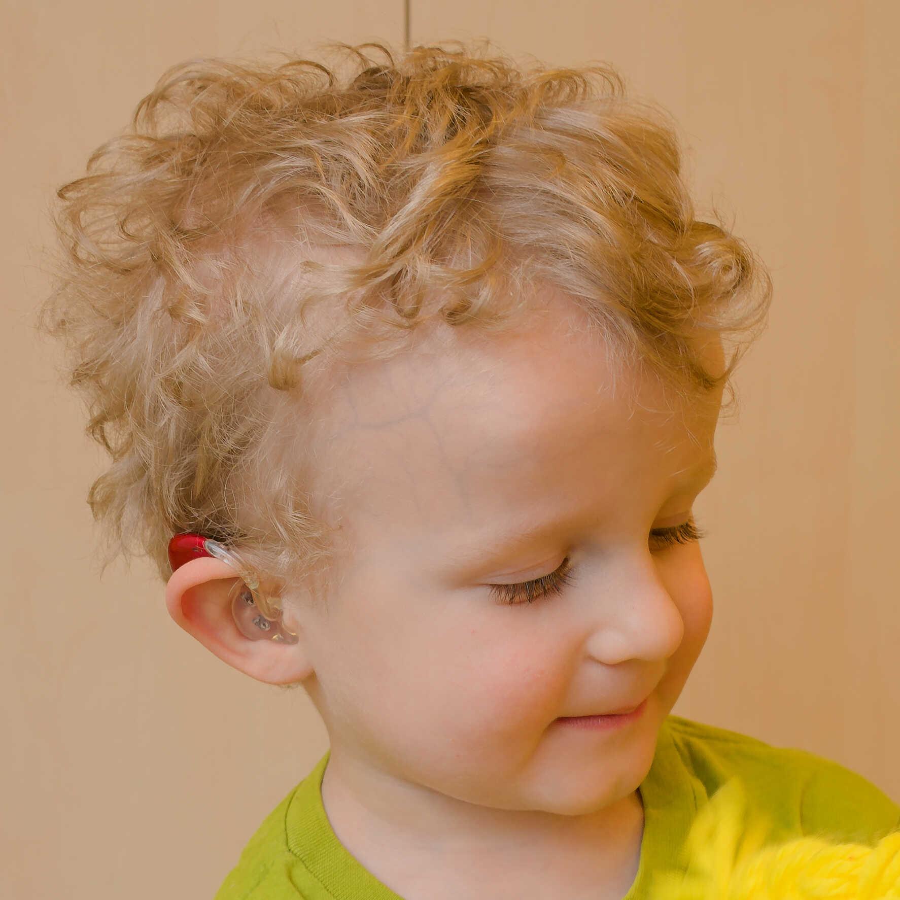 dziecko z aparatem słuchowym